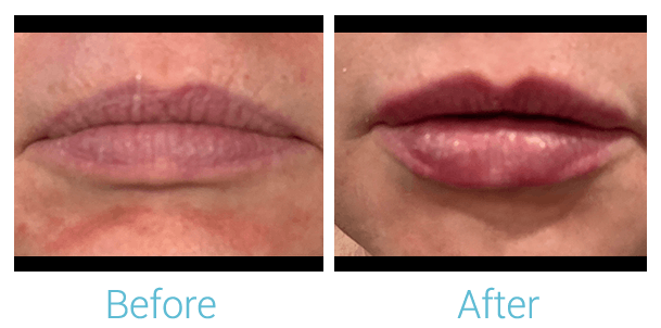 Lower Face Filler Gallery - Patient 58152122 - Image 1