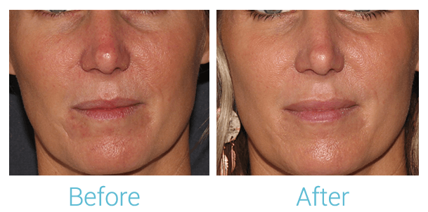 Lower Face Filler Gallery - Patient 58152123 - Image 1