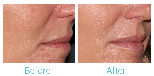 Lower Face Filler Gallery - Patient 58152124 - Image 1
