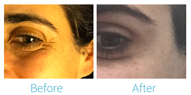 Lower Face Filler Gallery - Patient 58152125 - Image 1