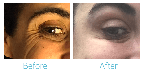 Lower Face Filler Gallery - Patient 58152125 - Image 2