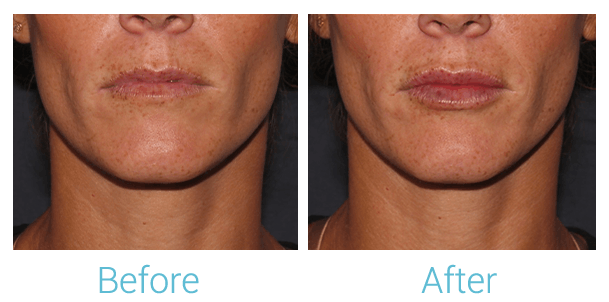 Lower Face Filler Gallery - Patient 58152126 - Image 1