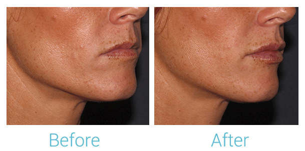 Lower Face Filler Gallery - Patient 58152126 - Image 2