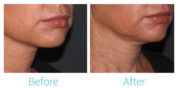 Lower Face Filler Gallery - Patient 58152127 - Image 2