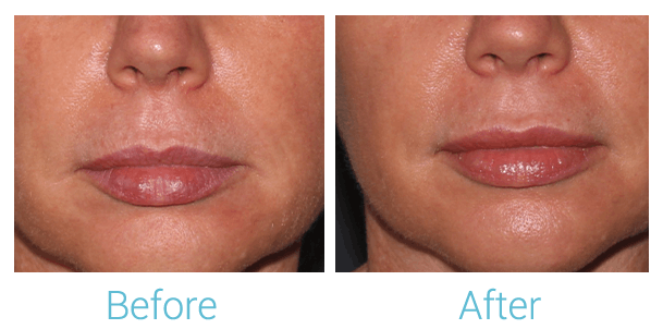 Lower Face Filler Gallery - Patient 58152127 - Image 1