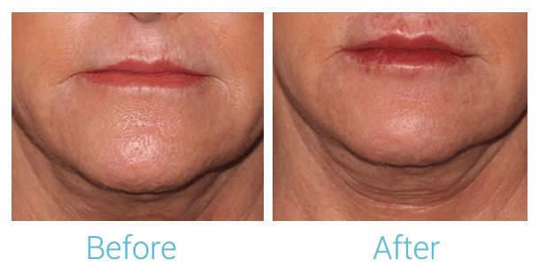 Lower Face Filler Gallery - Patient 58152128 - Image 1