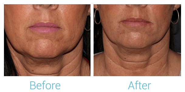 Lower Face Filler Gallery - Patient 58152129 - Image 1