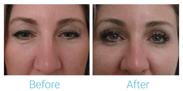 Ultherapy Gallery - Patient 58152132 - Image 1
