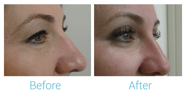 Ultherapy Gallery - Patient 58152132 - Image 2
