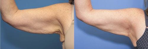 Arm Lift Gallery - Patient 58172289 - Image 1