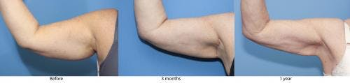 Arm Lift Gallery - Patient 58172290 - Image 1