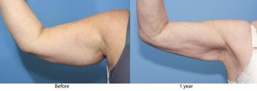 Arm Lift Gallery - Patient 58172290 - Image 2
