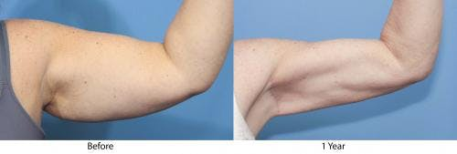Arm Lift Gallery - Patient 58172290 - Image 3