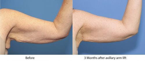 Arm Lift Gallery - Patient 58172291 - Image 1