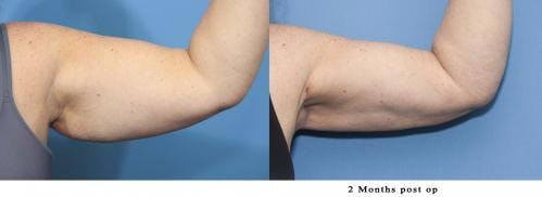 Arm Lift Gallery - Patient 58172292 - Image 1