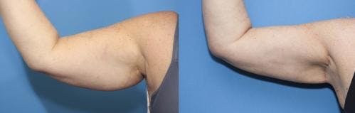 Arm Lift Gallery - Patient 58172292 - Image 2