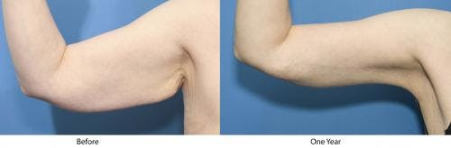 Arm Lift Gallery - Patient 58172293 - Image 1