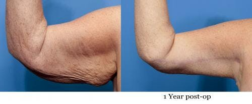 Arm Lift Gallery - Patient 58172305 - Image 1