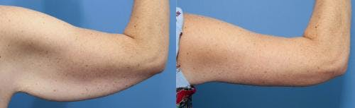 Arm Lift Gallery - Patient 58172306 - Image 1