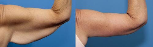 Arm Lift Gallery - Patient 58172307 - Image 1