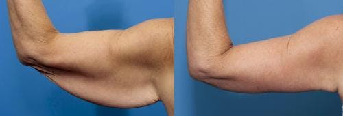 Arm Lift Gallery - Patient 58172307 - Image 2