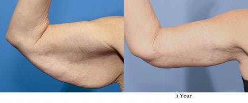 Arm Lift Gallery - Patient 58172307 - Image 3