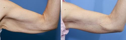 Arm Lift Gallery - Patient 58172314 - Image 1