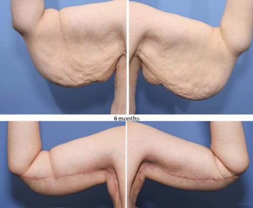 Arm Lift Gallery - Patient 58172316 - Image 1