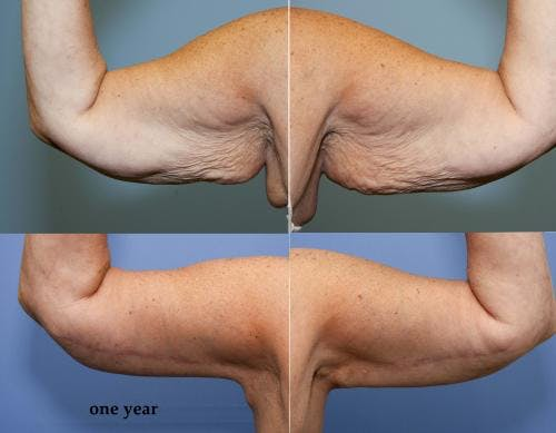 Arm Lift Gallery - Patient 58172317 - Image 1