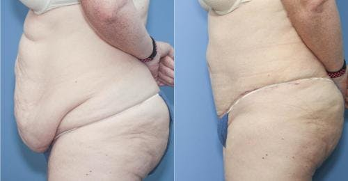 Body Lift Gallery - Patient 58172319 - Image 2