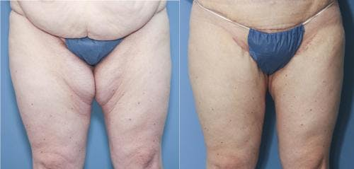 Body Lift Gallery - Patient 58172319 - Image 3