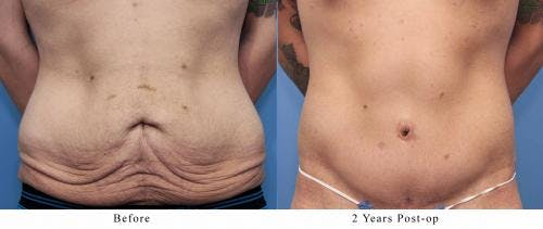 Body Lift Gallery - Patient 58172323 - Image 1