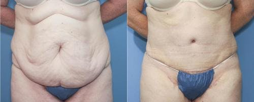 Tummy Tuck Gallery - Patient 58172324 - Image 1