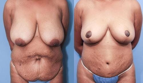 Body Lift Gallery - Patient 58172325 - Image 1