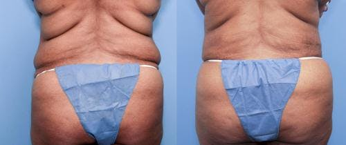 Body Lift Gallery - Patient 58172325 - Image 2