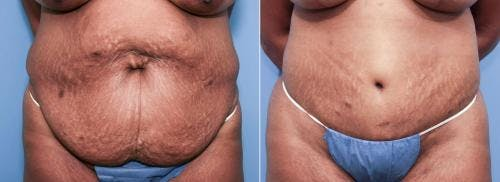 Body Lift Gallery - Patient 58172325 - Image 3