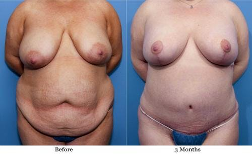 Body Lift Gallery - Patient 58172326 - Image 1