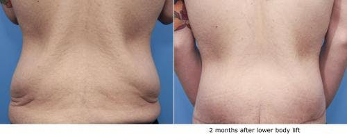Body Lift Gallery - Patient 58172329 - Image 1