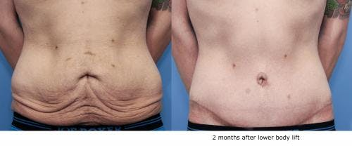 Body Lift Gallery - Patient 58172329 - Image 2