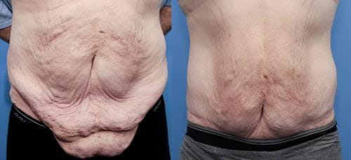 Tummy Tuck Gallery - Patient 58172331 - Image 1