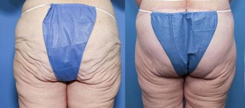 Body Lift Gallery - Patient 58172330 - Image 1
