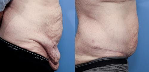 Tummy Tuck Gallery - Patient 58172331 - Image 2