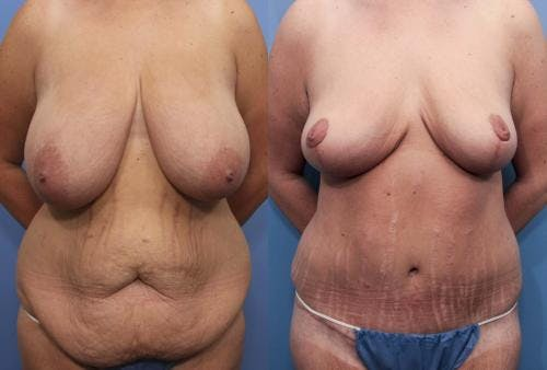 Tummy Tuck Gallery - Patient 58172333 - Image 1