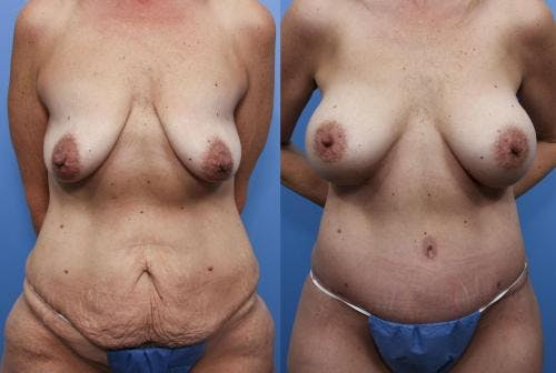 Body Lift Gallery - Patient 58172334 - Image 1