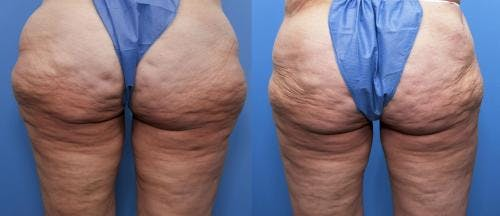 Body Lift Gallery - Patient 58172334 - Image 2