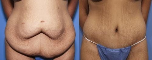 Tummy Tuck Gallery - Patient 58172335 - Image 1