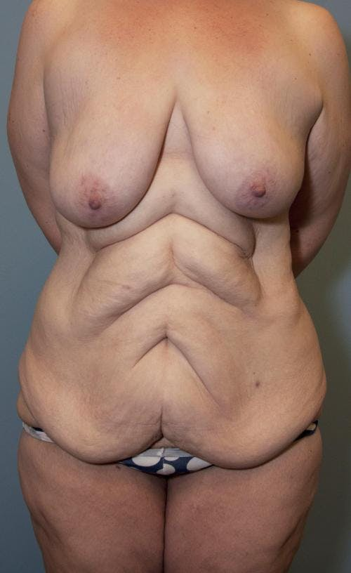 Body Lift Gallery - Patient 58172336 - Image 1