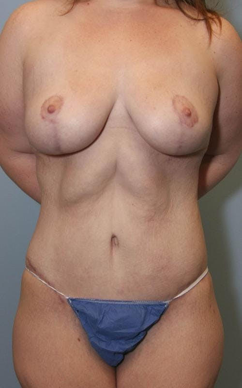 Body Lift Gallery - Patient 58172336 - Image 2