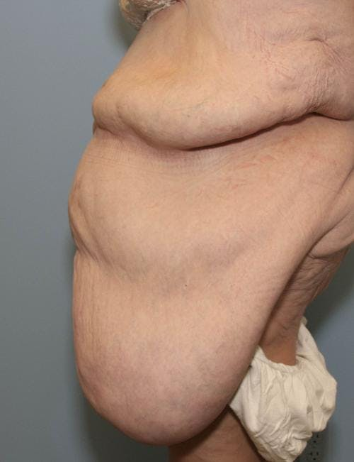 Tummy Tuck Gallery - Patient 58172337 - Image 3