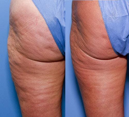 Cellulite Treatment Gallery - Patient 58172340 - Image 1